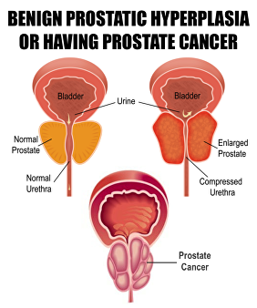 benign or cancerous prostate