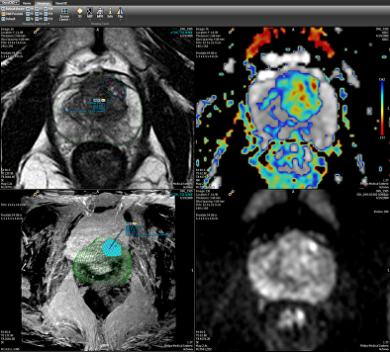 multi-parametric MRI scan of the prostate.
